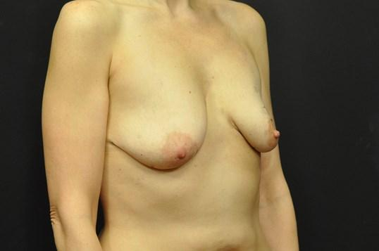 A Before photo of a Breast Augmentation With Lift Plastic Surgery by Dr. Craig Jonov in Seattle and Tacoma