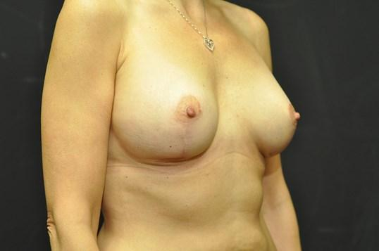 An After photo of a Breast Augmentation with Lift Plastic Surgery by Dr. Craig Jonov in Seattle and Tacoma