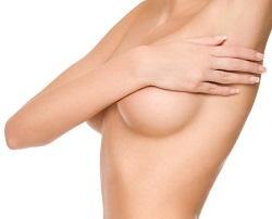 Breast Augmentation: High Profile vs. Moderate Plus Profile Implants