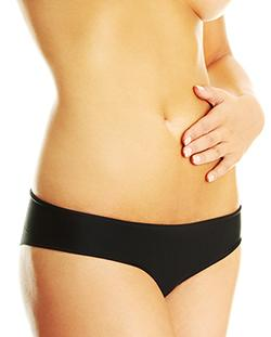 The Perfect Tummy Tuck In Bellevue