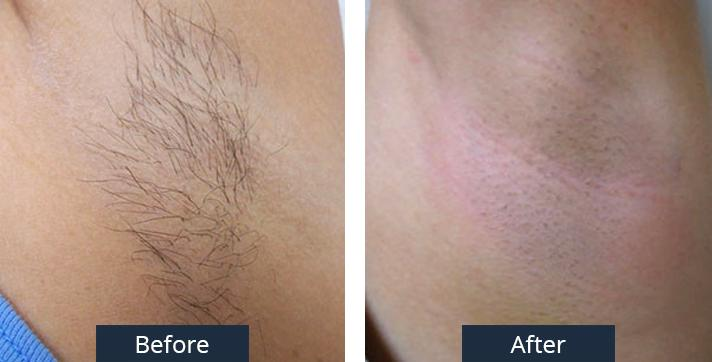 A Before and After Laser Hair Removal by Dr. Craig Jonov