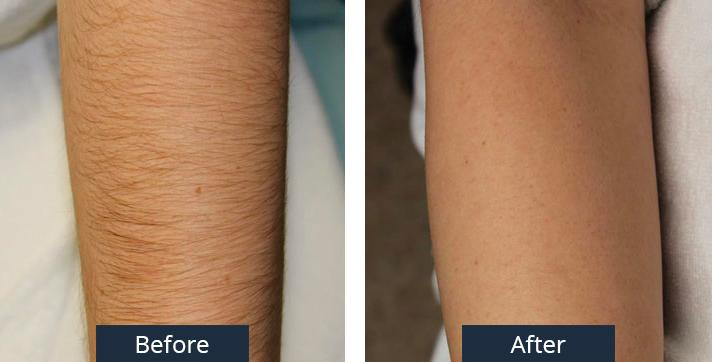A Before and After of a Laser Arm Hair Removal by Dr. Craig Jonov