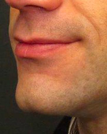 An After photo of a Chin Augmentation Plastic Surgery by Dr. Craig Jonov