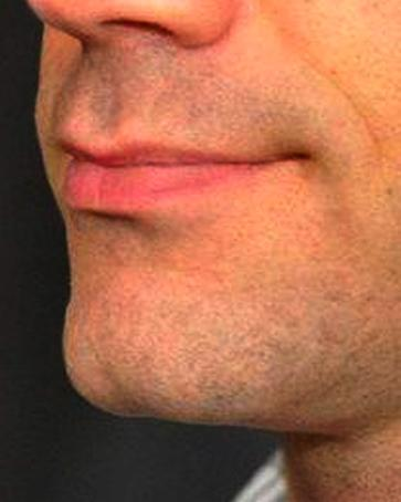 A Before photo of a Chin Augmentation Plastic Surgery by Dr. Craig Jonov