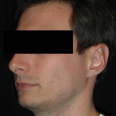 An After photo of Ear Surgery Plastic Surgery by Dr. Craig Jonov