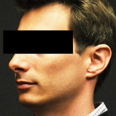 A Before Ear Surgery Plastic Surgery by Dr. Craig Jonov