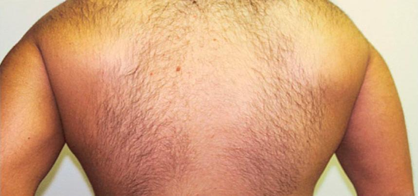 A Before photo of Laser Hair Removal by Dr. Craig Jonov
