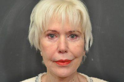 An After photo of Laser Skin Resurfacing by Dr. Craig Jonov