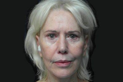 A Before photo of Laser Skin Resurfacing by Dr. Craig Jonov