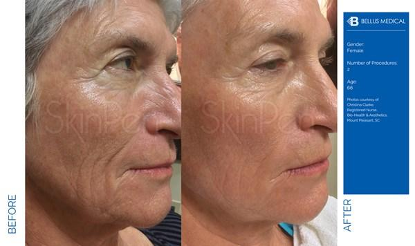 A Before and After Microneedling Treatment by Dr. Craig Jonov