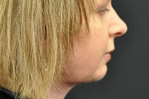 An After photo of a Neck Lift Plastic Surgery by Dr. Craig Jonov