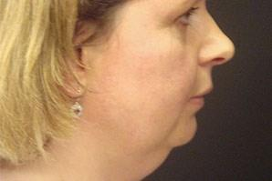 A Before photo of a Neck Lift Plastic Surgery by Dr. Craig Jonov