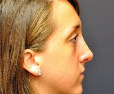 An After photo of a Revision Rhinoplasty Plastic Surgery by Dr. Craig Jonov