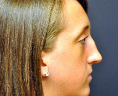 A Before photo of a Revision Rhinoplasty Plastic Surgery by Dr. Craig Jonov
