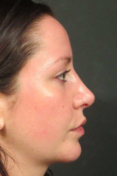 An After photo of a Rhinoplasty Plastic Surgery by Dr. Craig Jonov