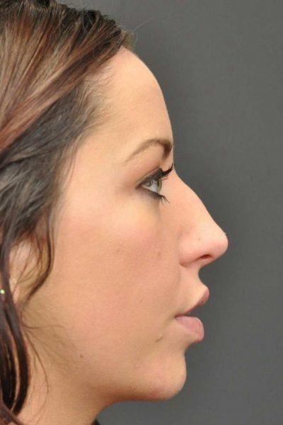 A Before photo of a Rhinoplasty Plastic Surgery by Dr. Craig Jonov