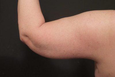 A Before photo of an Arm Lift Plastic Surgery by Dr. Craig Jonov
