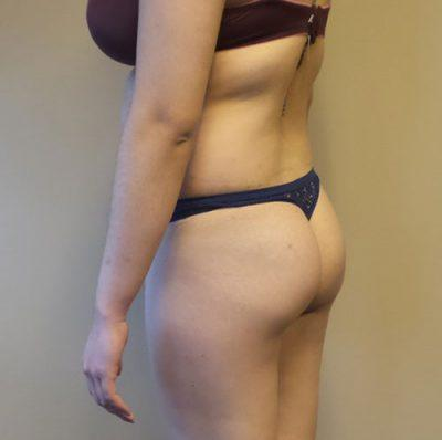 A Before photo of a Non-Surgical Brazilian Butt Lift Plastic Surgery by Dr. Craig Jonov