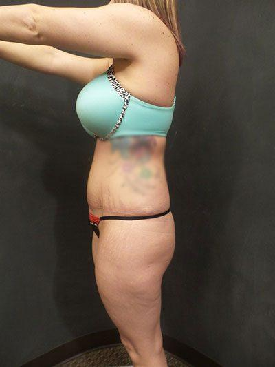 A Before photo of a Brazilian Butt Lift Plastic Surgery by Dr. Craig Jonov