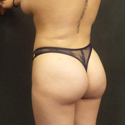 An After photo of a Non-Surgical Brazilian Butt Lift Plastic Surgery by Dr. Craig Jonov