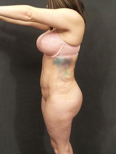 An After photo of a Brazilian Butt Lift Plastic Surgery by Dr. Craig Jonov