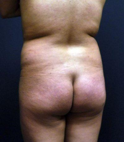 A Before Photo of a Body Contouring Plastic Surgery by Dr. Craig Jonov