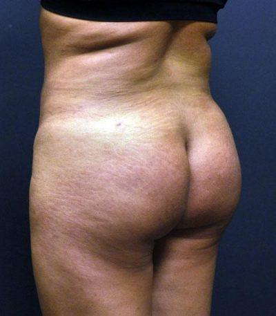 An After photo of a Body Contouring Plastic Surgery by Dr. Craig Jonov