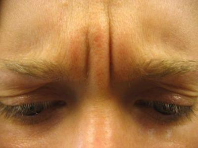 A Before photo of a Botox Treatment by Dr. Craig Jonov