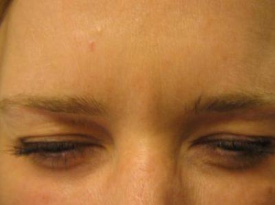 An After photo of a Botox treatment by Dr. Craig Jonov