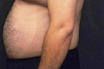 A Before photo of Liposuction Plastic Surgery by Dr. Craig Jonov