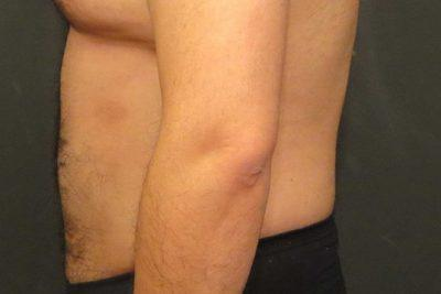 An After photo of Liposuction Plastic Surgery by Dr. Craig Jonov