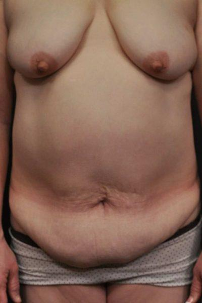 A Before photo of a Mommy Makeover Plastic Surgery by Dr. Craig Jonov