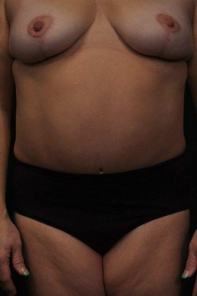 An After photo of a Mommy Makeover Plastic Surgery by Dr. Craig Jonov