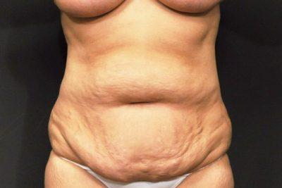 A Before photo of a SmartLipo Plastic Surgery by Dr. Craig Jonov