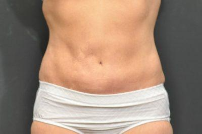 An After photo of a SmartLipo Plastic Surgery by Dr. Craig Jonov
