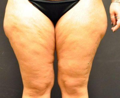 A Before photo of a Thigh Lift Plastic Surgery by Dr. Craig Jonov