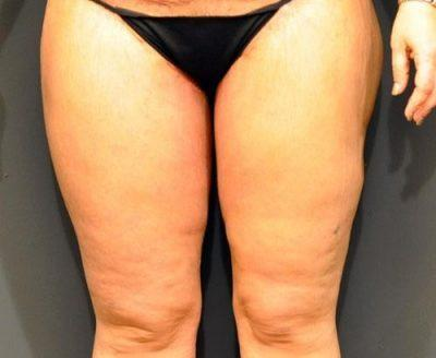 An After photo of a Thigh Lift Plastic Surgery by Dr. Craig Jonov