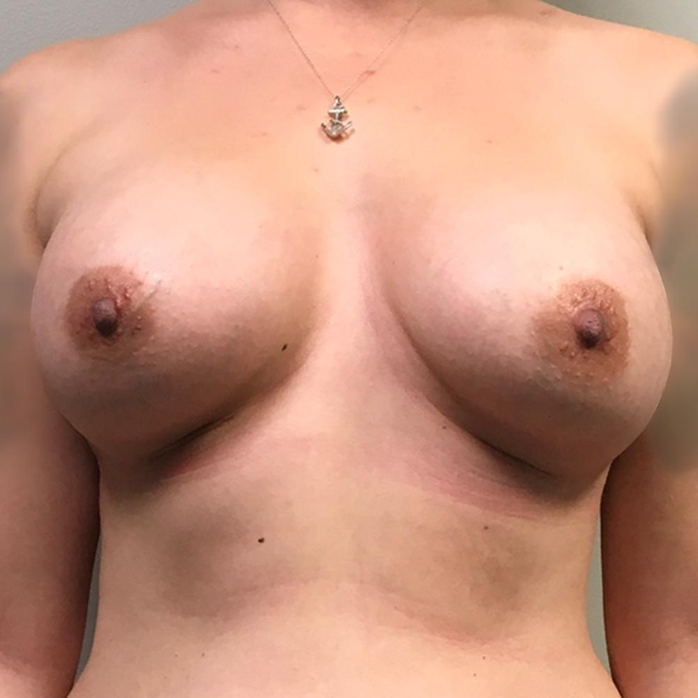 An After photo of a Breast Augmentation Plastic Surgery by Dr. Craig Jonov