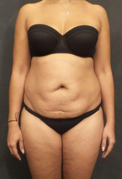 A Before photo of a Tummy Tuck Plastic Surgery by Dr. Craig Jonov