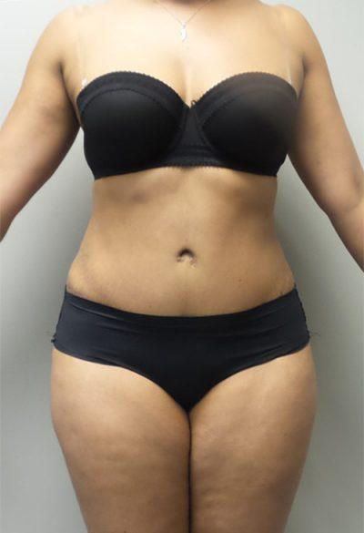 An After photo of a Tummy Tuck Plastic Surgery by Dr. Craig Jonov