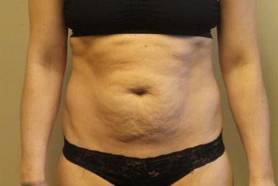 A Before photo of an Ultrashape Fat Reduction Plastic Surgery by Dr. Craig Jonov