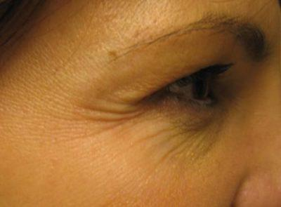 A Before photo of Botox by Dr. Craig Jonov