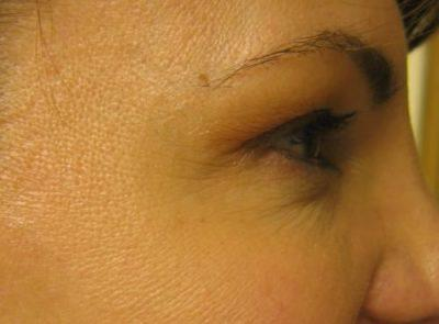 An After photo of Botox by Dr. Craig Jonov