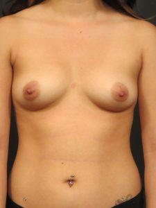 A Before photo of a Breast Augmentation Plastic Surgery by Dr. Craig Jonov