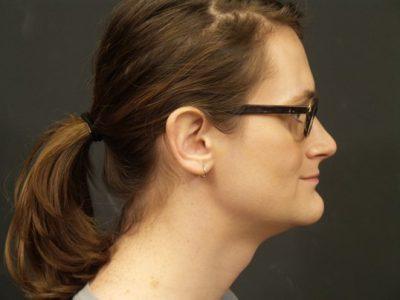 A Before photo of a Facial Feminization Plastic Surgery by Dr. Craig Jonov
