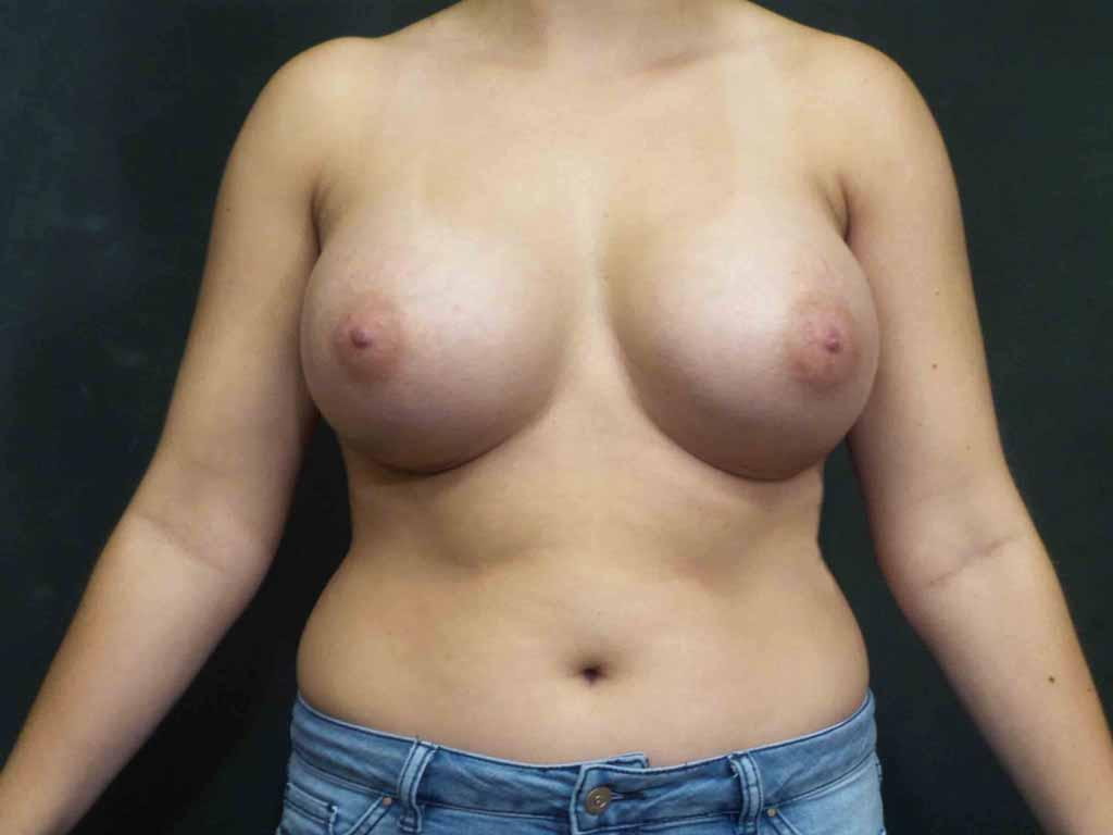 An After photo of a Breast Augmentation Surgery by Dr. Craig Jonov