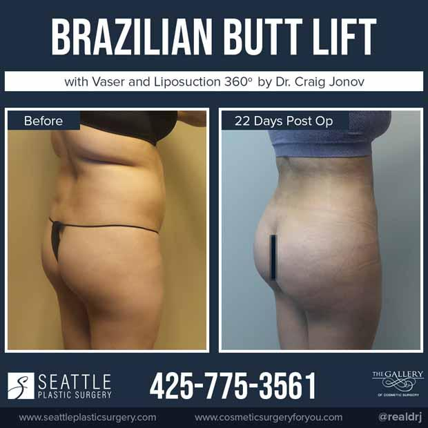 A Before and After Brazilian Butt Lift Plastic Surgery with Vaser and Liposuction 360 by Dr. Craig Jonov