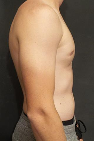An After of a Gynecomastia Plastic Surgery by Dr. Craig Jonov