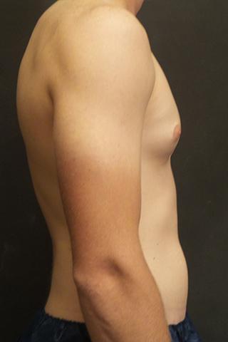 A Before of a Gynecomastia Plastic Surgery by Dr. Craig Jonov