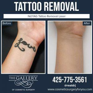 Image of Before and After tattoo removal treatment